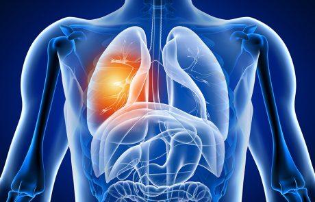 שלבים בסרטן ריאה מסוג תאים שאינם קטנים (NSCLC- Non-small Cell Lung Cancer)