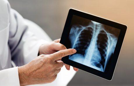 כיצד מאבחנים את סרטן הריאה?