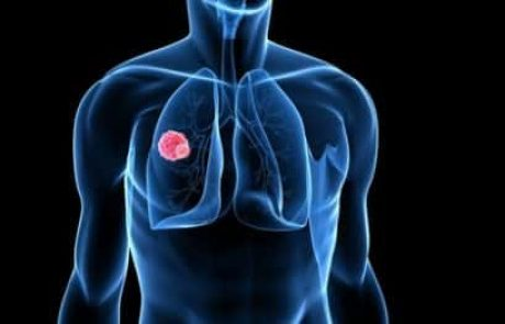סימנים ותסמינים של סרטן הריאה